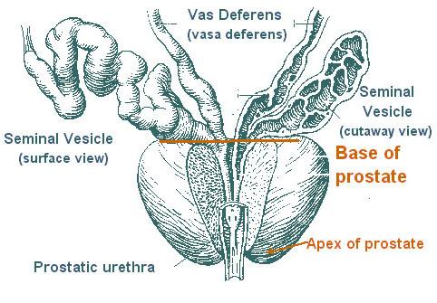 Prostate Cancer Anatomy